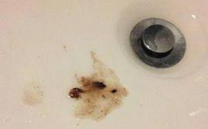 О чем говорит черная мокрота при кашле?