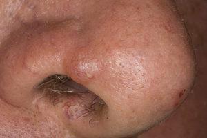 Базалиома на носу: основные симптомы и способы лечения опухоли