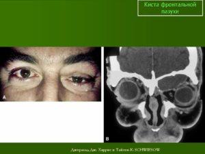 Киста лобной пазухи: причины возникновения, лечение и удаление новообразования