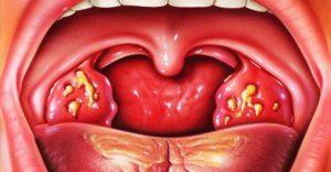 Стафилококк в горле: как проявляется и как лечить?