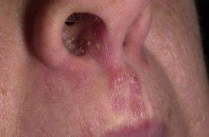 Что делать, если у ребенка золотистый стафилококк в носу?