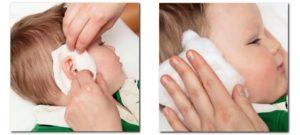 Как правильно поставить компресс на ухо с камфорным маслом?