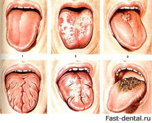 Кандидоз гортани: признаки, диагностика и лечение