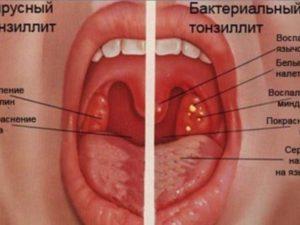 Как правильно лечить воспаленные миндалины?
