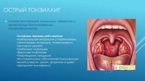 Воспаленные гланды? Признаки и эффективное лечение