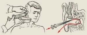 Как выгнать воду из уха: удаление воды из полости уха