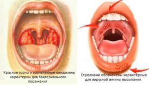 Ангина заразна или нет: способы инфицирования и лечение