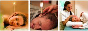 Когда и как правильно использовать фитосвечи для ушей?