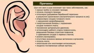 Звон в левом ухе: основные причины симптома