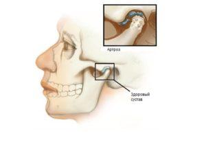 Болит челюсть возле уха основные причины симптома