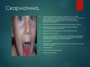 Скарлатина: основные симптомы и период заразности