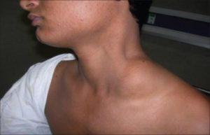 Увеличенные лимфоузлы на шее: эффективное лечение недуга