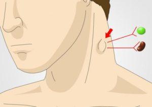 Что делать, если болит лимфоузел на шее слева?