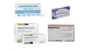 Антибиотики при ларингите у взрослых: список лучших препаратов