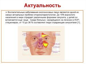 Гайморовы пазухи эффективное лечение воспаления