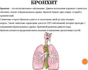 Воспаление бронхов: симптомы, виды и лечение недуга