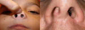 Полипы в носу: как правильно лечить образование?