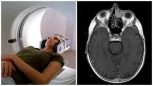 Компьютерная томография пазух носа: процедура и возможные результаты