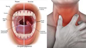 Чешется горло изнутри: причины, опасные признаки и методы лечения