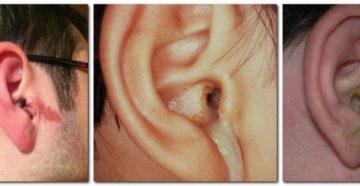Из уха течет жидкость: почему и что делать?