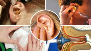 Стреляет в ухе: почему и как лечить в домашних условиях?