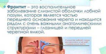 Фронтит воспаление лобных пазух: признаки и лечение