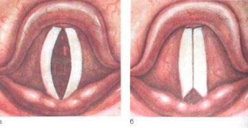 Почему возникает паралич гортани, чем он опасен и как лечиться?
