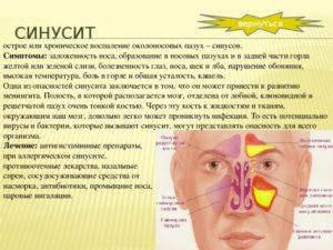Острый верхнечелюстной синусит – признаки и лучшие метода лечения