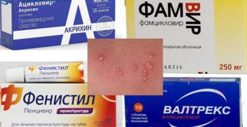 Ацикловир формы выпуска противовирусного препарата и особенности лечения герпеса