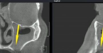 Перфорация гайморовой пазухи: причины, лечение и возможные последствия