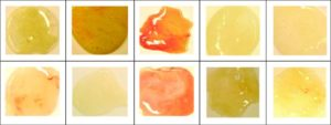О чем говорят оранжевые сопли и как он них избавиться?