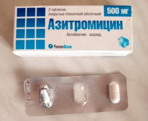 Лучшие антибиотики при тонзиллите и правила их применения