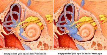 Жидкость во внутреннем ухе синдром Меньера: симптомы и лечение