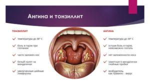 Основные причины боли в горле и чем их лечить