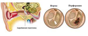 Разрыв барабанной перепонки: симптомы, причины и лечение