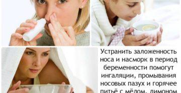 Когда мучает заложенность носа во время беременности причины и лечение