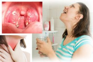 Признаки хронического тонзиллита и эффективное лечение народными средствами