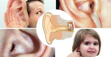 Воспаление уха – отит: признаки у детей и взрослых