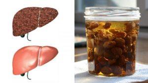 Как правильно использовать изюм от кашля?