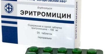 Эритромицин при ангине: действие антибиотика и правила его применения