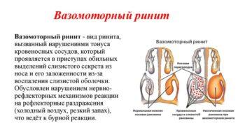 Как проявляется вазомоторный ринит и когда назначается операция?