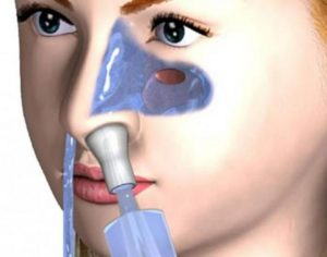 Как правильно прочистить пазухи носа в домашних условиях