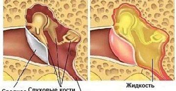 Симптомы и лечение тубоотита в домашних условиях