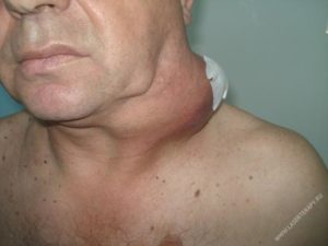 Рак лимфоузлов на шее: лечение и прогноз