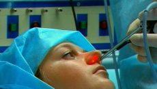 Когда, каким образом и для чего проводится прижигание сосудов в носу?