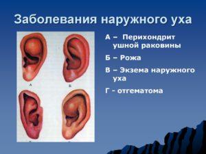 Воспаление ушной раковины: симптомы и лечение перихондрита