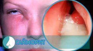 Запущенный гайморит методы лечения и возможные осложнения