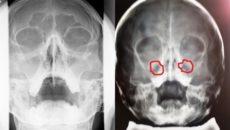 Гайморит на рентгеновском снимке: расшифровка рентгенограммы