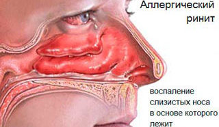 Аллергический ринит часть 1