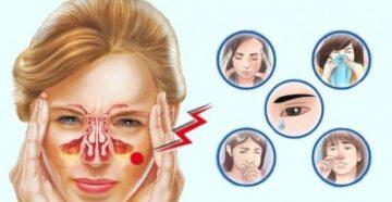 Аллергический ринит часть 2